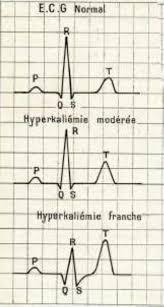 3 tracés d'ECG normal, avec hyperkaliémie modérée et franche